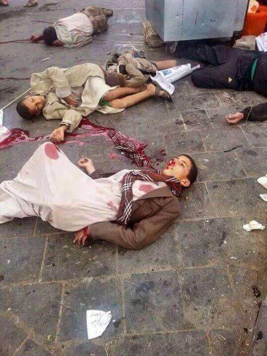 Saudi bombing on 20th April in Sanaa. WARNING GRAPHIC CONTENT: Source:Yemen Real News
